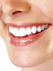 Folija za zube posle fiksne proteze cena